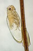 Kopflaus (Pediculus capitis)