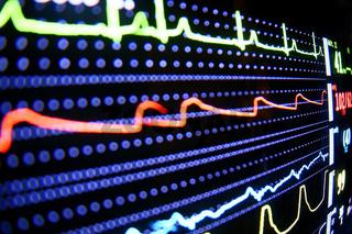 EKG Bildschirm Emergency