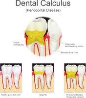 Dental calculus periodontal disease.