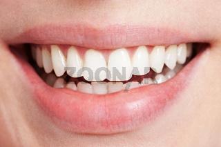 Lachender weiblicher Mund