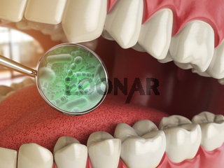 Bacterias and viruses around tooth. Dental hygiene medical concept.