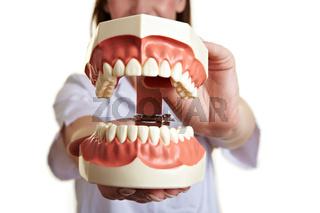 Übergroßes Zahnmodell