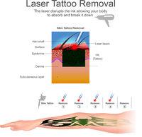 Tattoo removal.