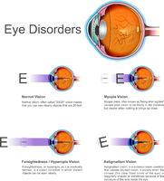 Eye disorders. Vector graphic.