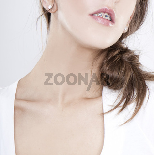 closeup of woman with orthodontic appliance on white
