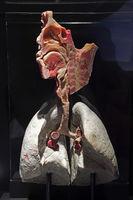 Präparat, Plastinat, Atemsystem des Menschen,  Menschen Museum,