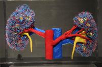Präparat, Plastinat, Gefäßsystem der Nieren,  Menschen Museum, B
