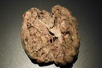 Präparat, Plastinat, polyzystische Niere,   Menschen Museum, Ber