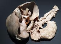 Präparat, Plastinat, Bauchspeicheldrüse, Pankreas,  Menschen Mus