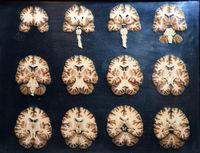 Präparat, Plastinat, Querschnitte durch das menschliche Gehirn,