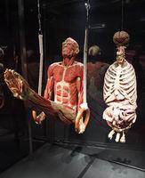 Präparat, Plastinat, Körper eines Mannes als Ringeturner, innere