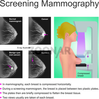 Screening Mammographie