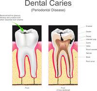 Dental caries periodontal disease.