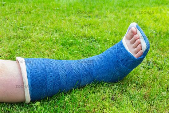 One gypsum leg of boy on grass