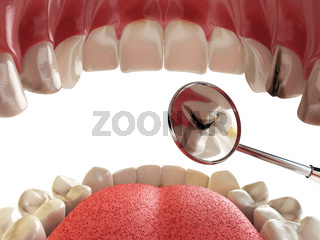 Human tooth with cariesand hole and tools. Dental searching concept. Teeth or dentures.