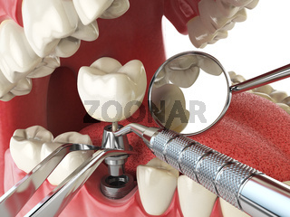 Tooth human implant. Dental implantation concept. Human teeth or dentures anddental tools.