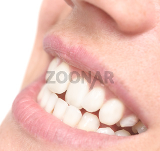 woman crooked teeth