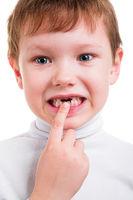 boy showing his missing milk teeth