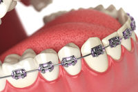 Teeth with braces or brackets in open human mouth. Dental care concept.
