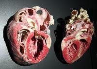 Präparat, Plastinat, stark vergrößertes menschliches Herz,  Mens