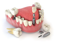 Tooth human implant. Dental concept. Human teeth or dentures.