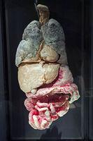 Präparat, Plastinat, innere Organe mit Metastasen,  Menschen Mus
