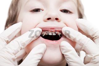 Examining caries teeth decay