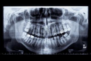 Aufnahme eines menschlichen Kiefers