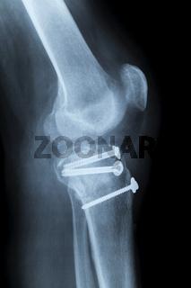 Rechtes menschliches Knie nach OP
