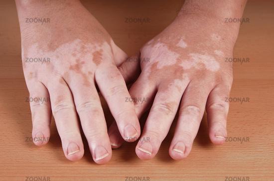 Болезнь кожи витилиго