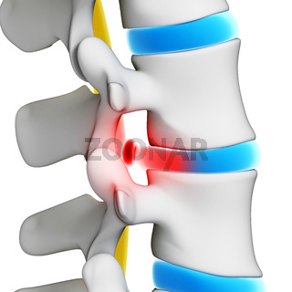 3d rendered illustration - herniated disk