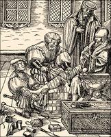 Amputation of a leg, 16th century