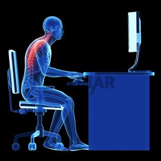 3d rendered medical illustration - wrong sitting posture