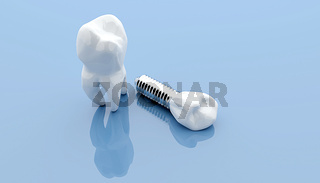 Dental implant and teeth