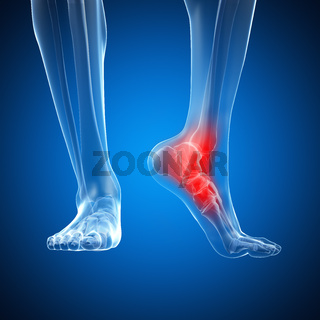 3d rendered illustration of a painful ankle