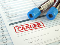 Cancer diagnosis. Blood in test tubes and results of hematological blood tests.