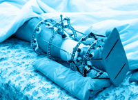 broken leg in Ilizarovs external fixator, Ilizarovs apparatus