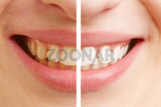 Vorher nachher Vergleich von Zähnen beim Bleaching