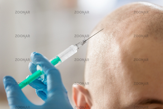 close up of hands with syringe and bald male head