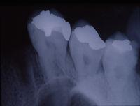 Röntgenbild der Zähne mit Füllungen und Brücken