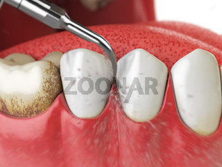 Professional teeth cleaning. Ultrasonic teeth cleaning machine delete dental calculus from human teeth.