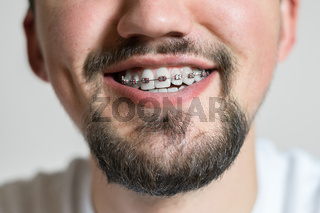 Close up of a young man with braces smiling. Macro shot of a young man with braces on a white background