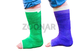 Two colorful gypsum legs on white background