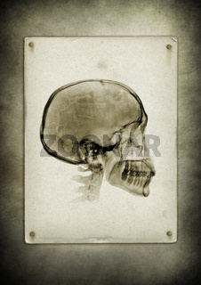 X-ray skull on a vintage paper background
