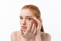 Young caucsian woman squeezes acne on the face of beauty