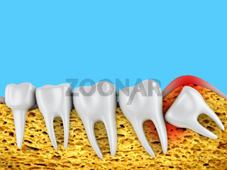 molars and  wisdom tooth