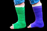 Two colorful gypsum legs on black background