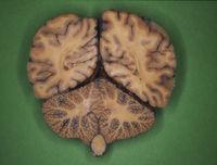 Menschliches Gehirn im Längs und Querschnitt