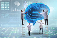 Team of doctors examining human brain