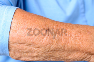 Close up detail of the forearm of an elderly woman